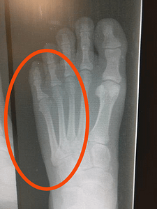 Do you have outside of the foot pain?
