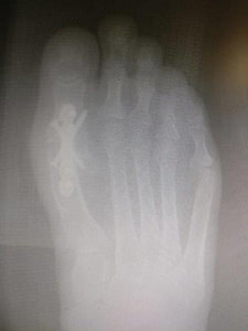 Pros and Cons 1st MTPJ metatarsal phalangeal joint fusion of the big toe joint