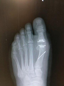 Joint Replacement of the big toe joint recovery time