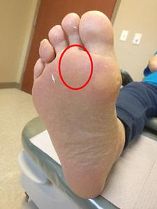 2nd toe pain (second toe) capsulitis home treatment