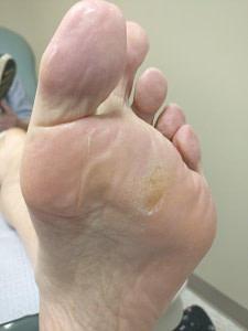 Athlete's Foot Fungus Apple Cider Vinegar Cure: