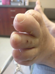 thick white toenails with white marks and white spots