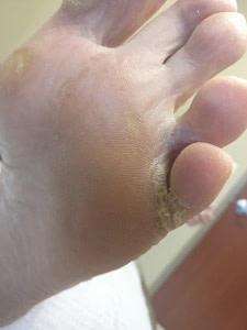 Severe Athlete's foot between the toe interdigital tinea pedis