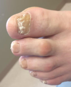 white stains, white spots and white streaks on the toenails