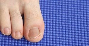 Ingrown Toenail Pain