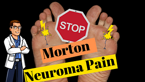 Morton Neuroma & Morton Neuralgia Pain