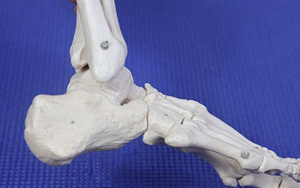 Sinus Tarsi Pain Outside of the Ankle