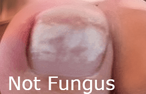 White Chalky Toenails after toenail polish