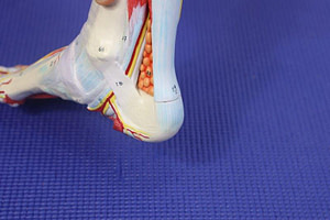 Chronic Achilles Tendinitis Rehabilitation: Best Home Treatments