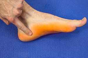 Athlete's foot fungus mocassin distribution and bottom of the heel