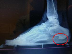 Calcaneus Bone Spur Bottom of the heel spur