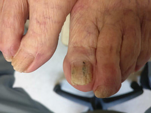 Discolored Toenails from Nail Polish: Causes & Best Treatment