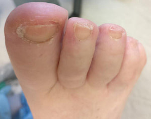 Podiatrist medicare pedicure for toenail fungus